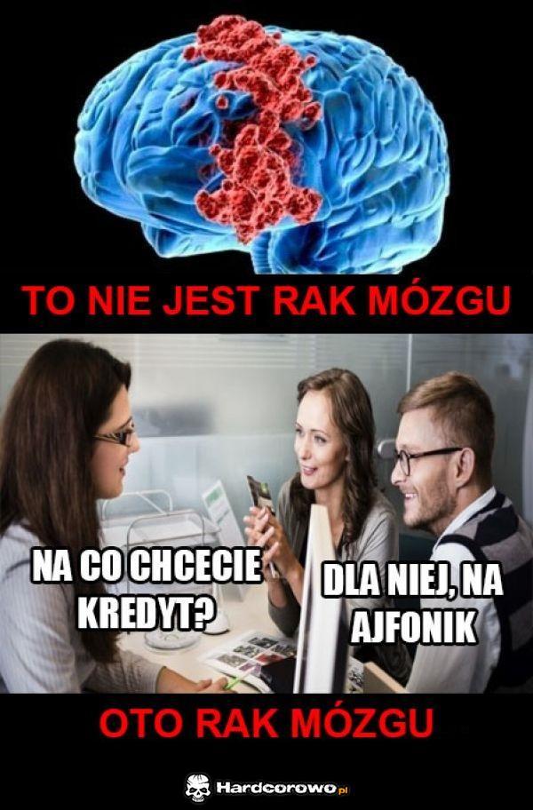 Rak mózgU - 1